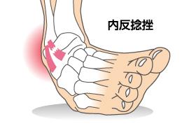 捻挫を知る1」足関節捻挫のメカニズム | CramerJapan